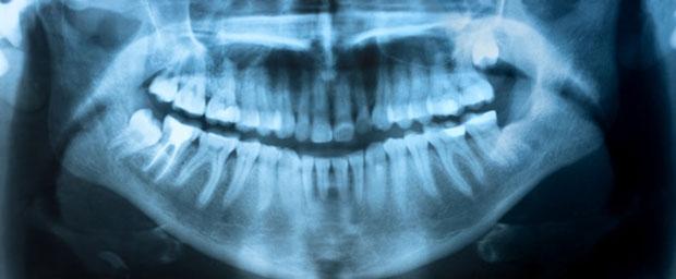 Welche Vorteile bietet 3D-Röntgen?