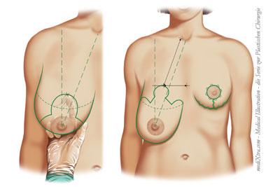 36 Brust DD Frau