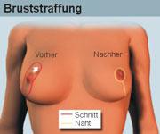 Die Operation nach, die Brust nach der Geburt wieder herzustellen