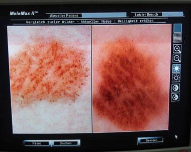 hautkrebs vorsorge muttermal leberflecken besser checken aufsicht mikroskop. Black Bedroom Furniture Sets. Home Design Ideas